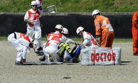 Valentino Rossi suffered a displaced and exposed fracture of his right tibia bone.