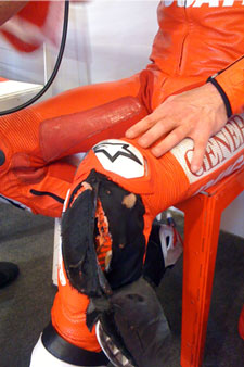 Nicky Hayden's left knee had a small run-in with a drain cover during the Indianapolis Grand Prix.
